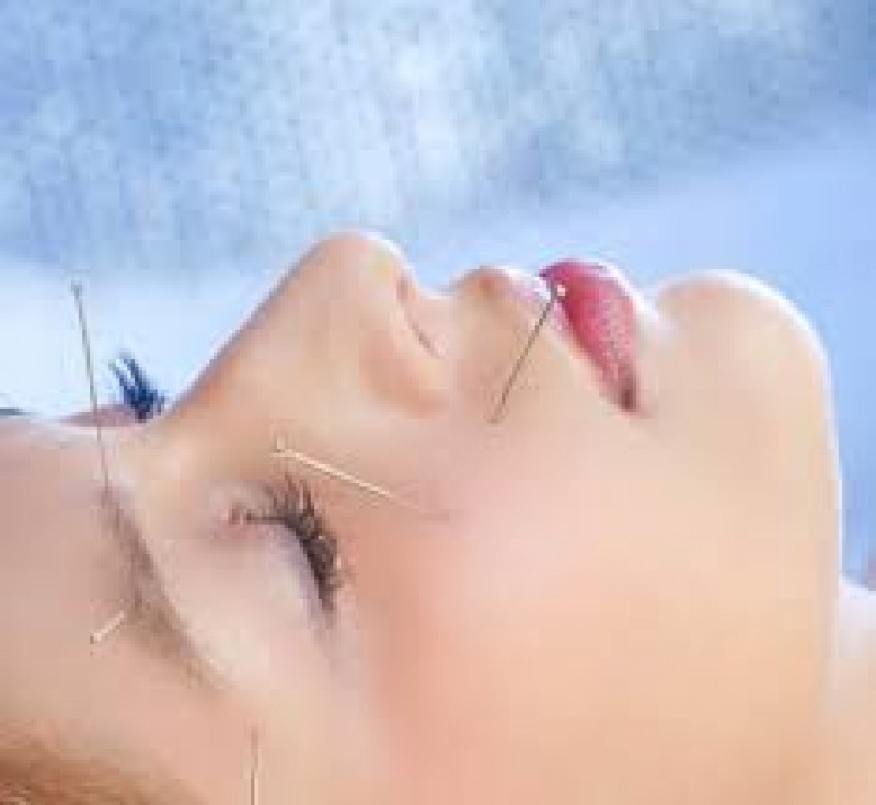 Acupuncture as an add-on therapy to sublingual allergen-specific immunotherapy for patients with allergic rhinitis.
